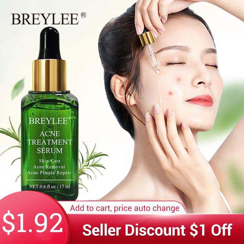 BREYLEE Acne Treatment Face Serum Mask Anti Acne Pimple Scar Remover Moisturizing Whitening Skin Care Facial Essence Cream 17ml