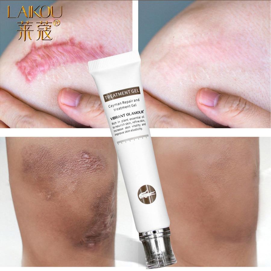 LAIKOU Stretch Mark Remover Skin Care Scar Cream From Stretch Marks Maternity Treatment Scar Repair Skin Care Body Cream Bio Oil