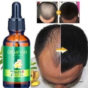 Ginger Hair Growth Oil Anti-hair Loss Hair Regrowth Essential Oil  Nourishing Hair Follicles Ginger Essential Oil
