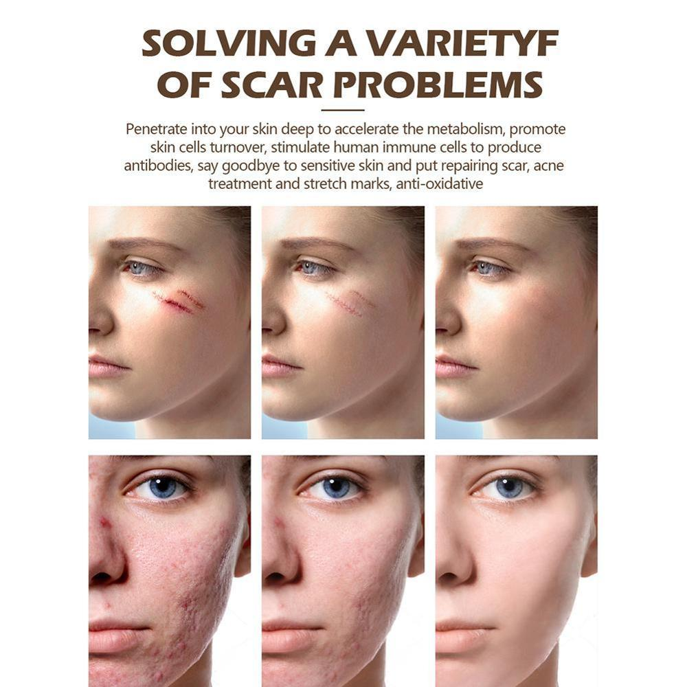 Repair Scar Cream Removal Scars For Face Or Body Pigmentation