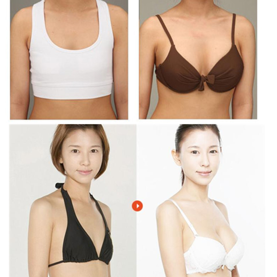 S shape Gold Papaya Hyaluronic acid Collagen protein breast enhance enlarge growth cream mask body healthy beauty care tool-3