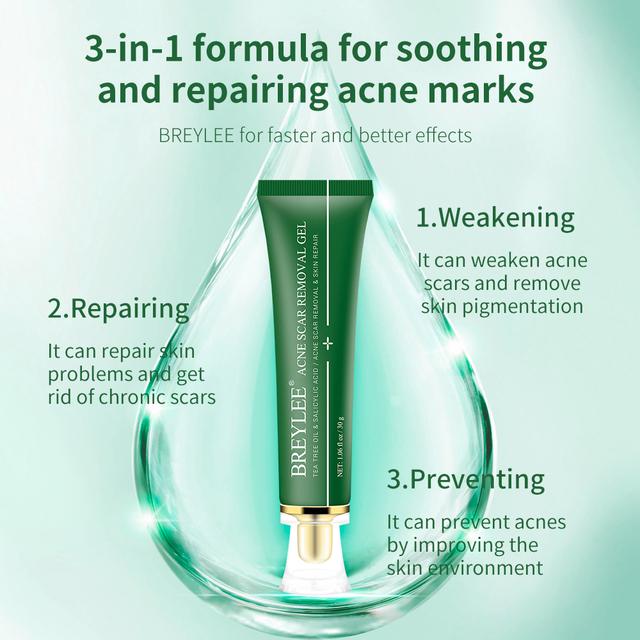 BREYLEE Acne Scar Treatment Cream Removal Gel Fade Acne Marks Spots Remove Skin Pigmentation Whitening Acne Serum Essence 30g