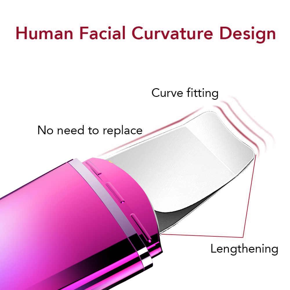 Limpiador ultrasónico de poros máquina de limpieza facial limpiador de piel eliminar espinillas producto útil instrumento de acné instrumento de belleza