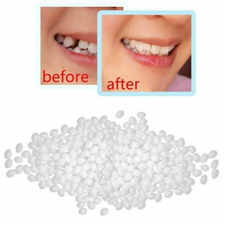 H726cf02dd9b6480dbe7aae2d1dfaa1feB - DIY Temporary Missing Tooth REPAIR dentures Filler Cosmetic  False Teeth Dental Replacement Material