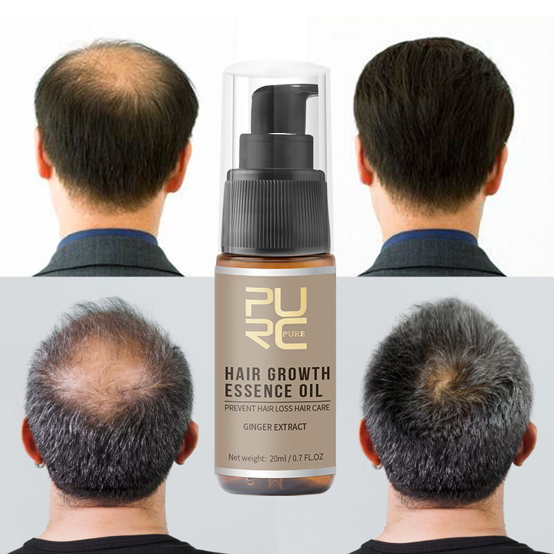 PURC Hot Sale Fast Hair Growth Essence Oil Hair Loss Products Treatment Help For Professional Hair Growth Hair Care 20ml TSLM1 image