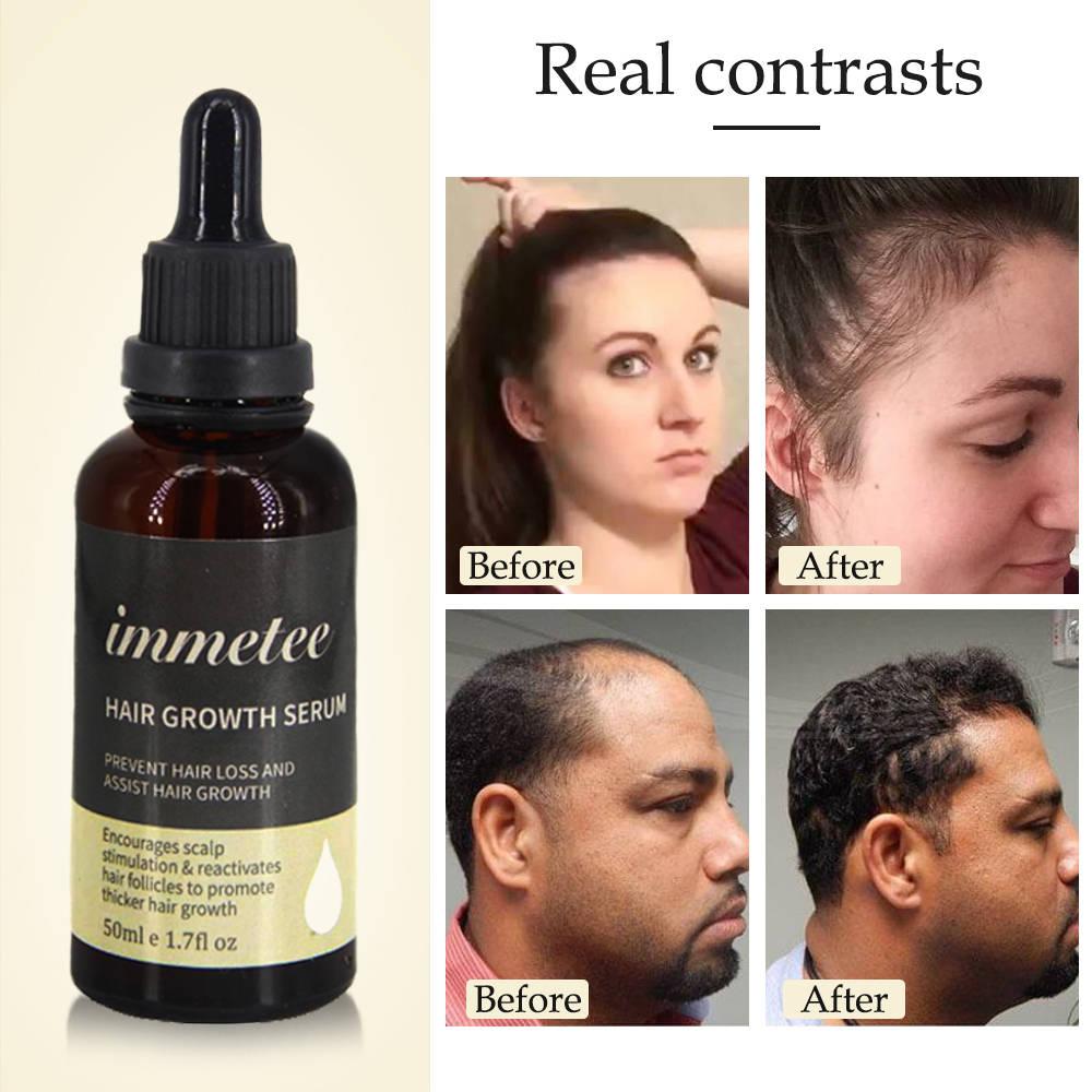 HairGrowth Essence OilAntiHairLoss Treatment forBeardGrowth OilRepair Damage Hair RootsHair CareProducts Hair Tonic 3