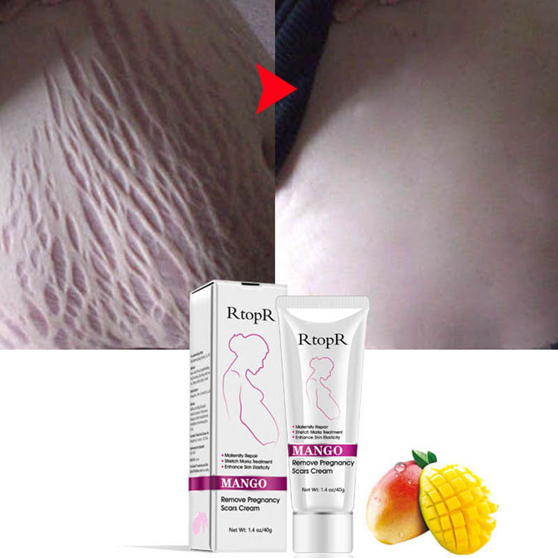 Mark-Cream Line Natural for Pregnancy-Repair Scar-Slack Abdomen Mango Stretch Mild Non-Irritating