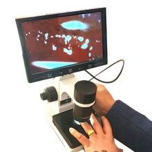Microscope numérique Zoom, Instrument de Microcirculation sanguine, écran LCD en option, détecteur de Microcirculation capillaire à rabat