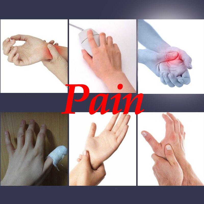 Achat Boswellia - Quels traitements pour l'Arthrite ? — Silver Economie
