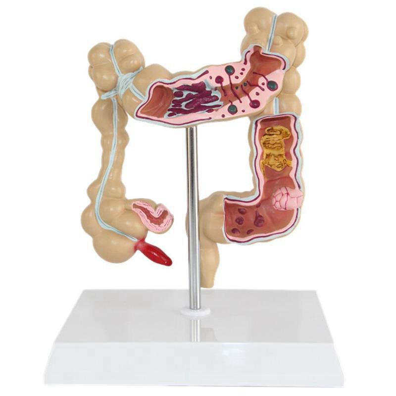 Colorectal Lesion Model Human Colon Large Intestine Pathological Diseases Model Medical Mrganizer Anatomy