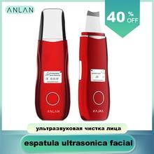 Ультразвуковой скребок для лица, очиститель кожи, удаление угрей, шпатель для кожи EMS для лица, вибрационный массаж, ультразвуковой инструмент для очистки