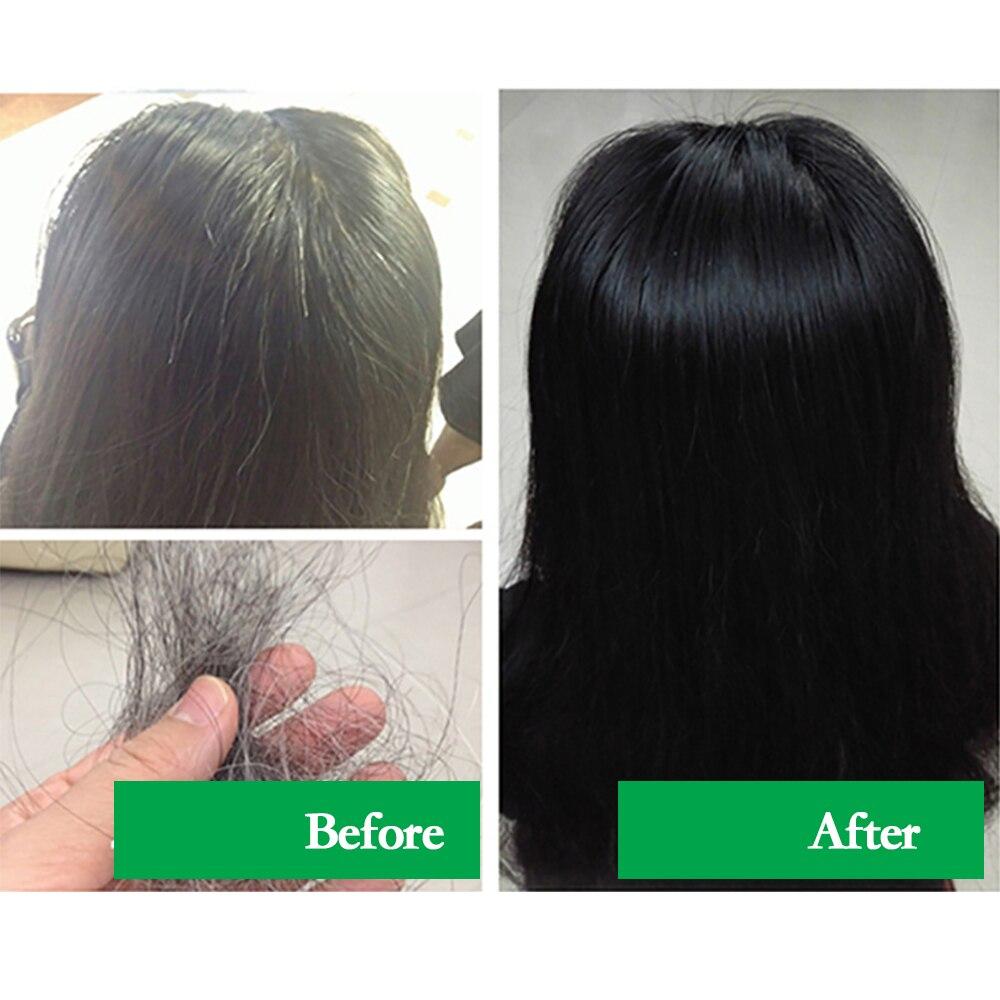cinza cabelo branco remoção do cabelo volta