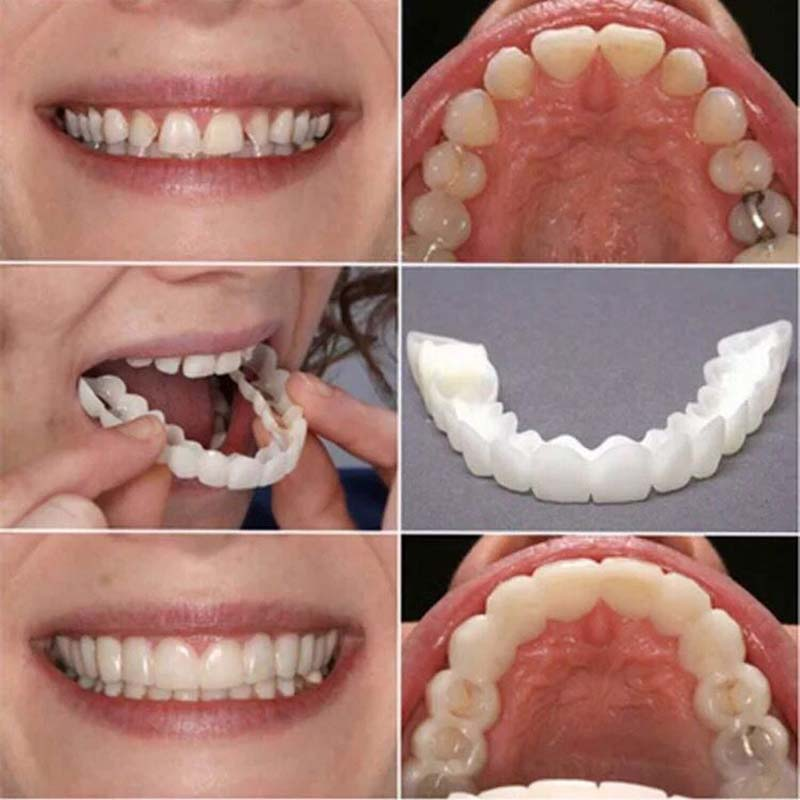 2Pcs/Set Silicone Teeth Whitening Teeth Cover Teeth  Braces Simulation Denture Upper Lower Teeth Set With Box Orthodontic Braces