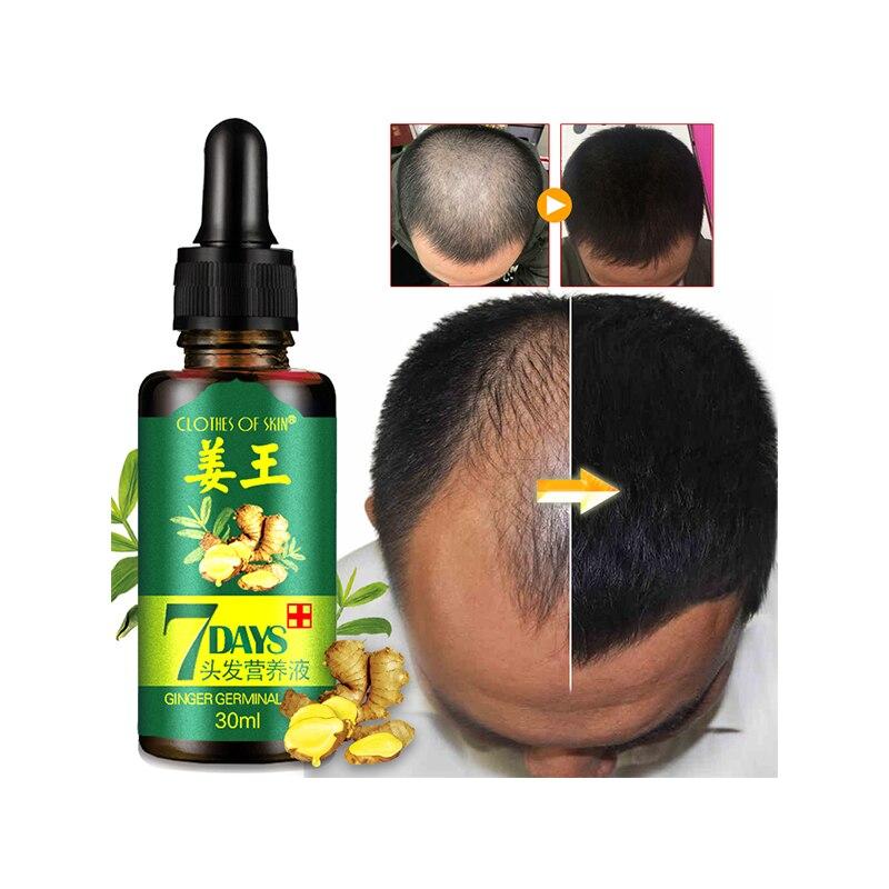 30ml Hair Growth Oil Unisex Thinning Hair Stimulating Conditioner Supplement Anti Hair Loss Hair Growth Vitamins Care Oils