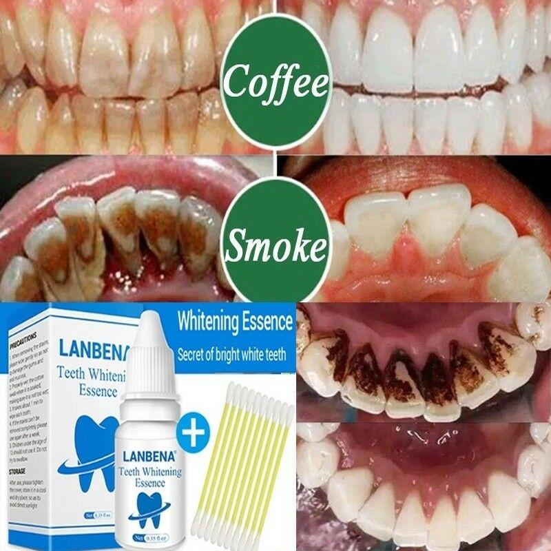 10ml Oral Hygiene Care Teeth Whitening Essence Serum Plaque Stains Remove Liquid Oral Care