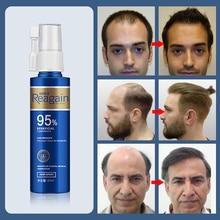 REAGAIN שיער טיפול למנוע שיער אובדן שיער צמיחה תרסיס טיפול לעזור לגברים שיער להחזיר טוניק לגדול שיקום 60 ml
