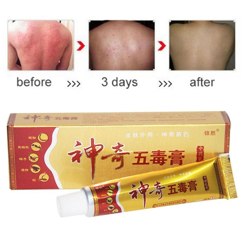 15g 100% Magic Five-poison Cream Ointment Ointment Anti-bacterial Itching Strong Type
