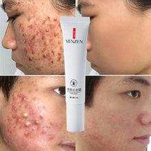 Crème de traitement pour l'acné sur le visage, cosmétiques, soins, gel contre points noirs, contrôle de l'huile
