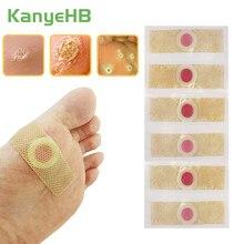 12 pçs pé milho remoção assassino calos verrugas plantar thorn dor alívio curativo gesso ferramenta de cuidados com os pés médica desintoxicação adesivo