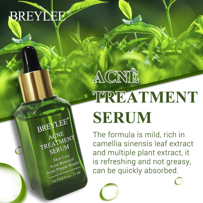 BREYLEE Acne Treatment Sersum Pimple Removal Facial Essence Moisturizing Shrink Pore Brighten Smooth Face Skin Care Repair Ance