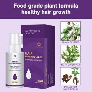 Image 4 - Hair Growth Essence Oil Anti Hair Loss for Hair Growth Treatment for Hair Loss Thickner Hair Tonic Hair Serum Hair Care Products