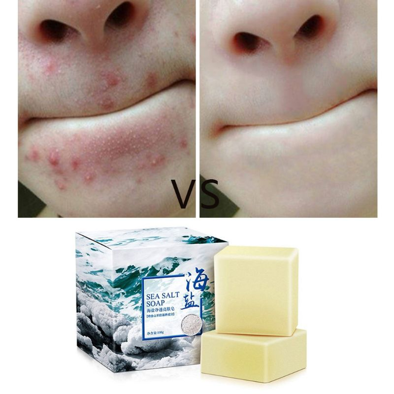 100g Sea Salt Facial Cleaner Anti Mites Soap Removal Pimple Pores Acne Treatment Moisturizing Oil Control Whitening Skin Care