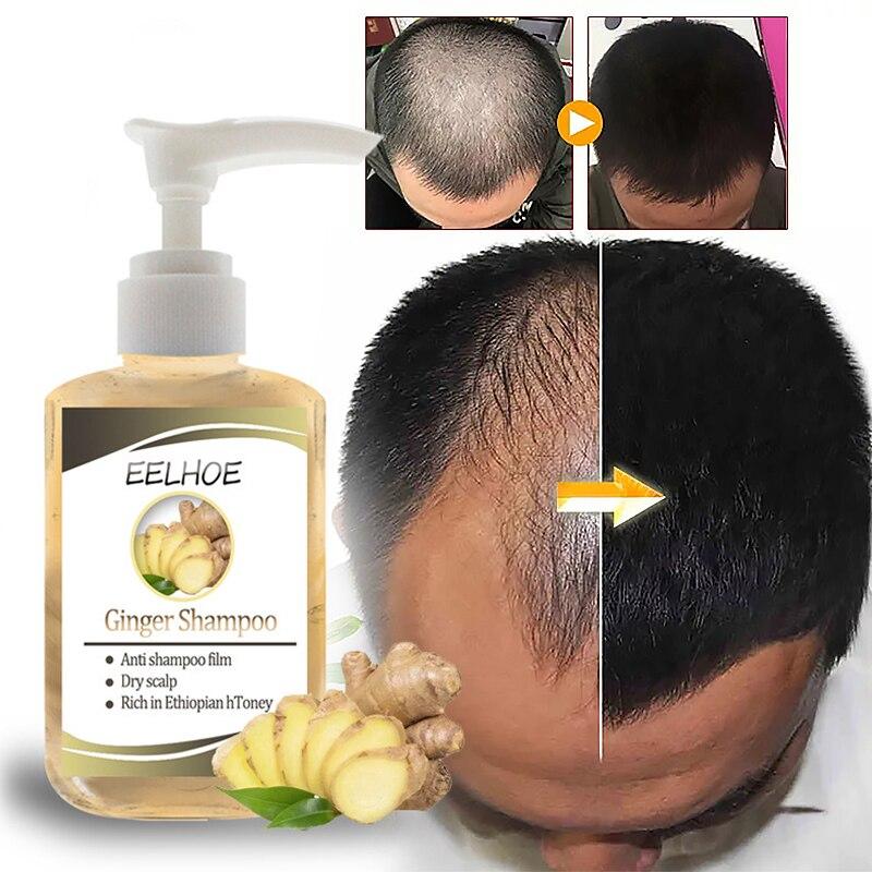 Шампунь против выпадения волос Ginger против перхоти, шампунь против зуда, освежающий шампунь с контролем жирности TXTB1