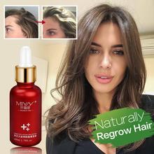 Hair Growth Essence Oil Anti Hair Loss for Hair Growth Treatment for Hair Loss Thickner Hair Tonic Hair Serum Hair Care Products cheap GD FDA(2015) Hair Loss Product GOSSYPIUM HERBACEUM 1 bottle 30ml yfy03