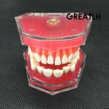 ทันตกรรมการศึกษาการสอนรุ่นมาตรฐานรุ่นฟันที่ถอดออกได้ Soft GUM ผู้ใหญ่ TYPODONT รุ่น