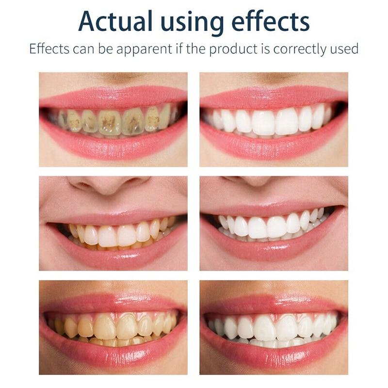 Espuma Creme Dental Dentes De Limpeza Profunda