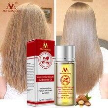 Produtos poderosos rápidos da perda de cabelo da essência do crescimento do cabelo tratamento líquido do óleo essencial que impede produtos dos cuidados capilares da perda de cabelo 20ml