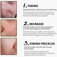 Hot sale Freckle Cream for Anti-wrinkle Face Stains Dark Spot Skin Pigmentation Skin Whitening Cream