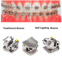 Supports dentaires orthodontiques, 20, tous les types, auto-ligatation Active, support passif avec Tube Buccal, Mini MBT./Roth