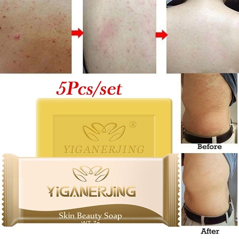 5pcs Sulfur Soap Add  Psoriasis Cream Dermatitis Eczematoid Eczema Ointment Treatment Skin Psoriasis-IX