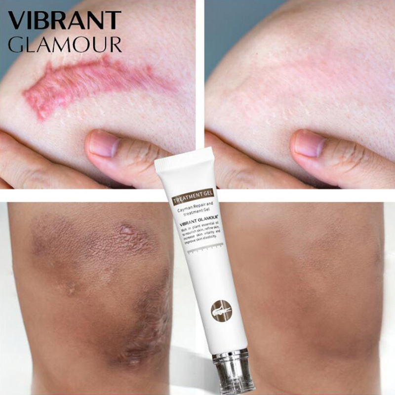 20g Stretch Mark Remover Skin Care Scar Cream From Stretch Marks