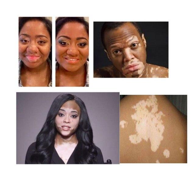 New Traditional Treatment Vitiligo Skin Disease Vaginal White Spot Treament Pigment Melanin Promoting Home Use Beauty Devices Aliexpress