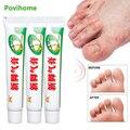 1/3 предмета, крем для ног кукурузы удаления для ухода за стопами и руками для эрозионной разъедание кожи против зуда запаха пота средства ух...