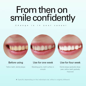 Image 4 - AZDENT AZ 9Pro Ultrasonic Electric Toothbrush 5 Modes USB Rechargeable Teeth Brush Deep Cleaning Teeth Whitening Brush Adult Kid