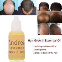 Andrea Hair Growth Oil Essence Thickener for Hair Growth Serum Hair Loss Product 100% Natural Plant Extract Liquid 20ml цены онлайн