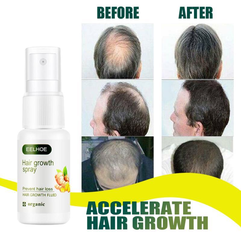 Сыворотка для роста волос имбиря, 20 мл, анти-предотвращает выпадение волос, алопеция, жидкость для восстановления поврежденных волос, быстр...
