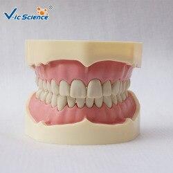 Modelo de dientes de Modelo Dental, imitación de ciencia médica