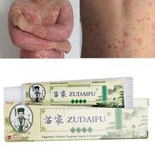 Com caixa dropshipping zudaifu pele psoríase creme dermatite eczematoid eczema pomada tratamento psoríase cuidados com a pele creme