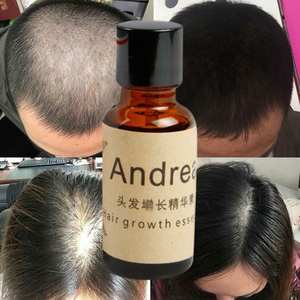 Andrea Hair Care Fast Hair Growth Alopecia Loss Liquid 20ml Ginger Dense Sunburst Grow Restoration Pilatory Massage Oil