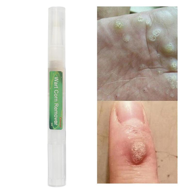 3ML Skin Tag Remover Liquid Body Warts Treatment Cream Remover Foot Corn Removal Plantar Genital Warts Ointment Foot Skin Care