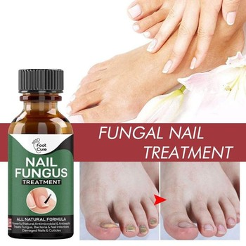 Nail Repair Liquid Hand And Foot Onychomycosis Care Whitening Foot Nail Fungus Removal Gel Anti Infection Paronychia Repair image