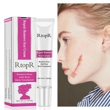 RtopR cream Acne Scar Stretch Marks Remover Cream Skin Repai