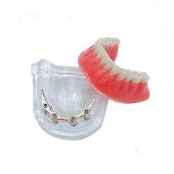 Протез имплантата модель зубные протезы модель нижней челюсти с золотой бар Стоматологическая Учебная модель