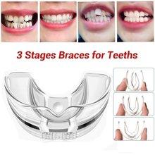 3 etapy Dental aparaty ortodontyczne urządzenie szelki wyrównanie trener zęby ustalający bruksizm ochraniacz na zęby prostownica do zębów