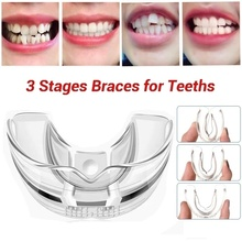 Mouth-Guard Braces Appliance Alignment-Trainer Bruxism Dental-Orthodontic 3 Stages