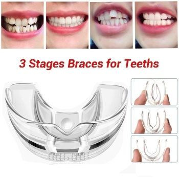 3 Stages Dental Orthodontic Braces Appliance Braces Alignment Trainer Teeth Retainer Bruxism Mouth Guard Teeth Straightener on AliWatcher